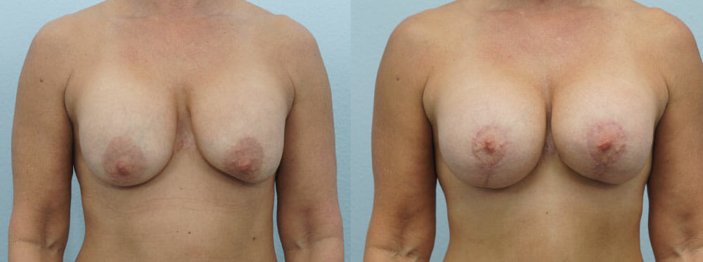 BREAST REVISION PATIENT 13
