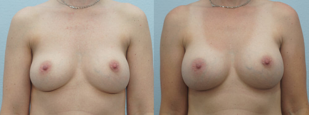 BREAST REVISION PATIENT 10