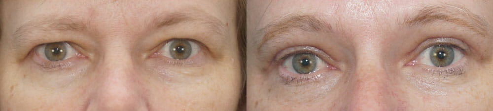 BROWLIFT AND EYELID SURGERY (BLEPHAROPLASTY) PATIENT 12