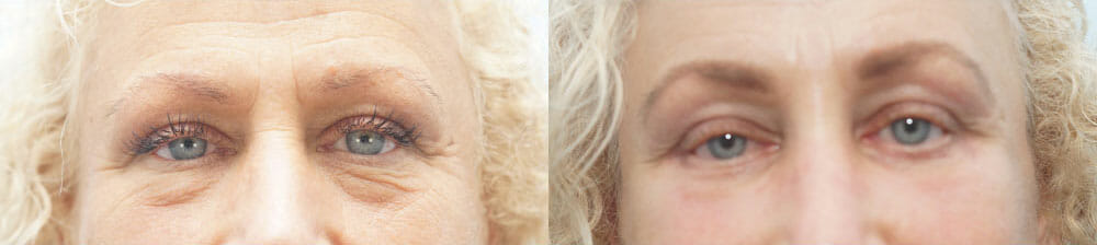 BROWLIFT AND EYELID SURGERY (BLEPHAROPLASTY) PATIENT 13