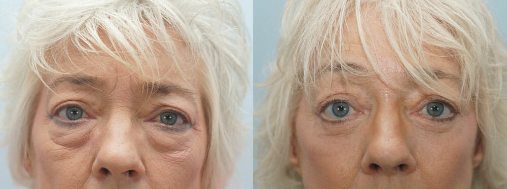 BROWLIFT AND EYELID SURGERY (BLEPHAROPLASTY) PATIENT 10