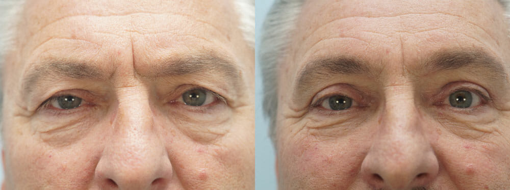 BROWLIFT AND EYELID SURGERY (BLEPHAROPLASTY) PATIENT 11