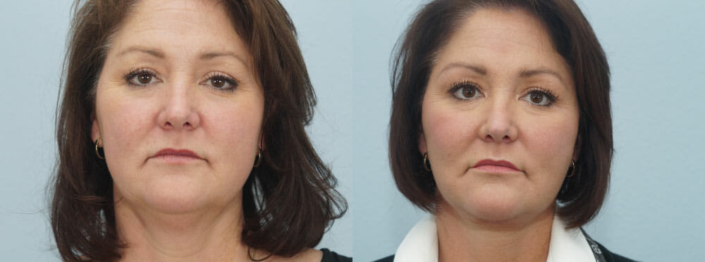 FACELIFT / NECK LIFT PATIENT 7