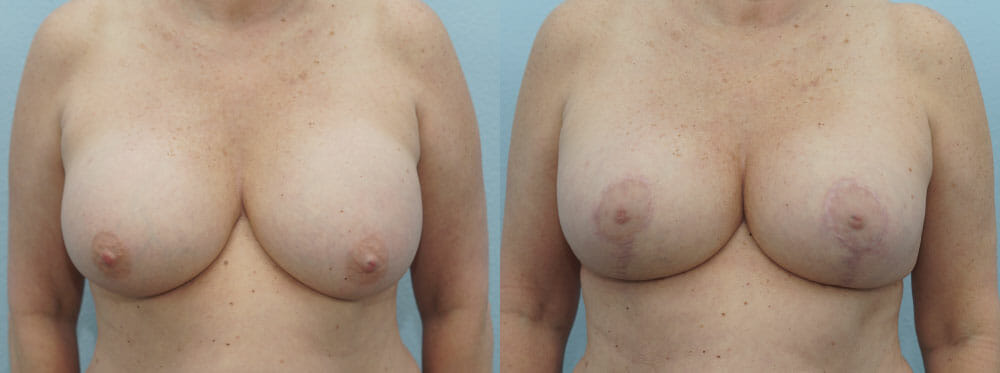 BREAST REVISION PATIENT 11