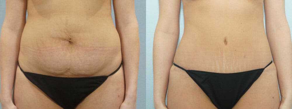 TUMMY TUCK PATIENT 31