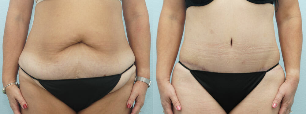TUMMY TUCK PATIENT 36