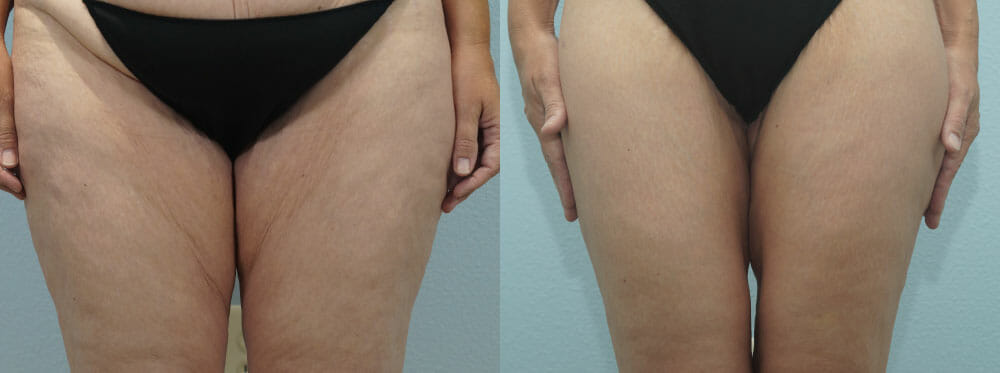 THIGH LIFT PATIENT 2