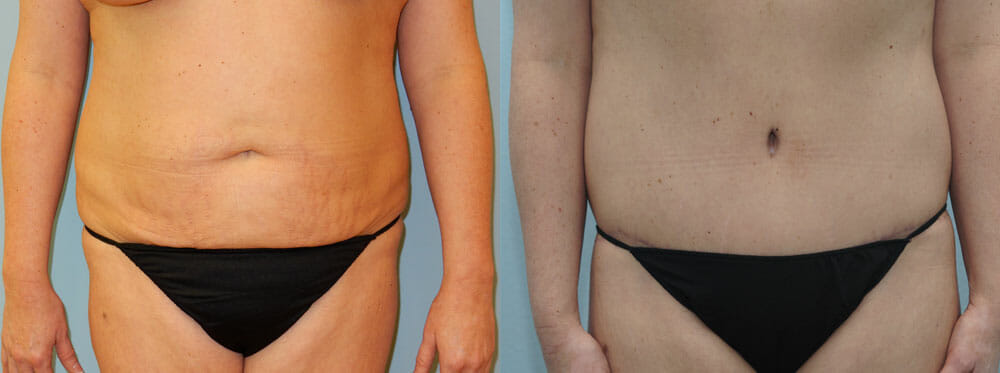 TUMMY TUCK (ABDOMINOPLASTY) PATIENT 19