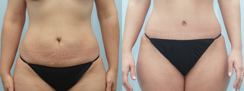 TUMMY TUCK (ABDOMINOPLASTY) PATIENT 20