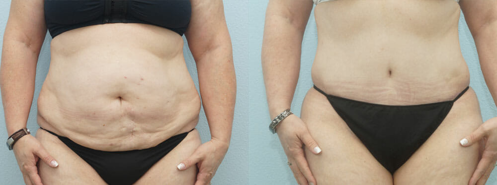 TUMMY TUCK (ABDOMINOPLASTY) PATIENT 24