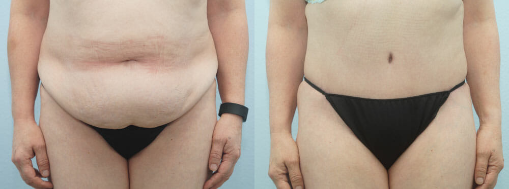 TUMMY TUCK (ABDOMINOPLASTY) PATIENT 25
