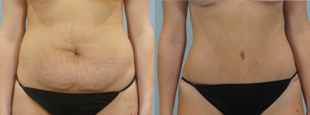 TUMMY TUCK PATIENT 28
