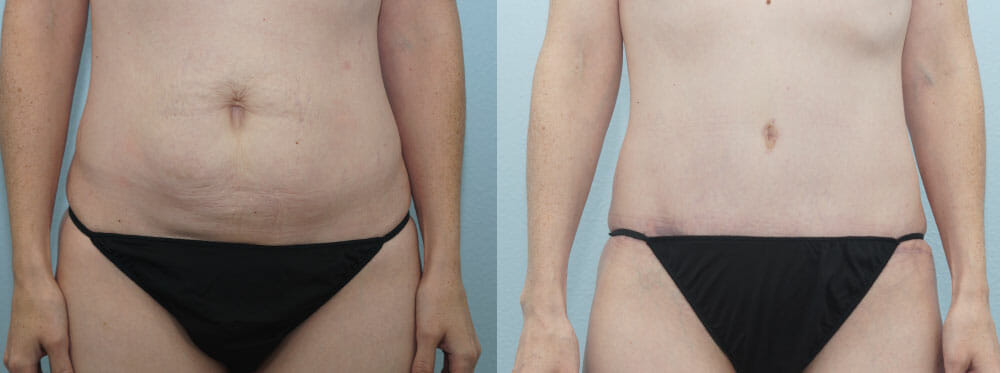 TUMMY TUCK PATIENT 30