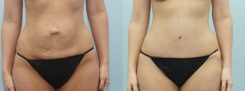 TUMMY TUCK PATIENT 33