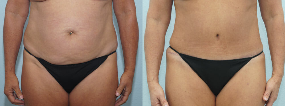 TUMMY TUCK PATIENT 34