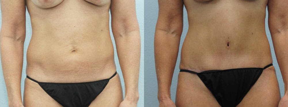TUMMY TUCK PATIENT 38