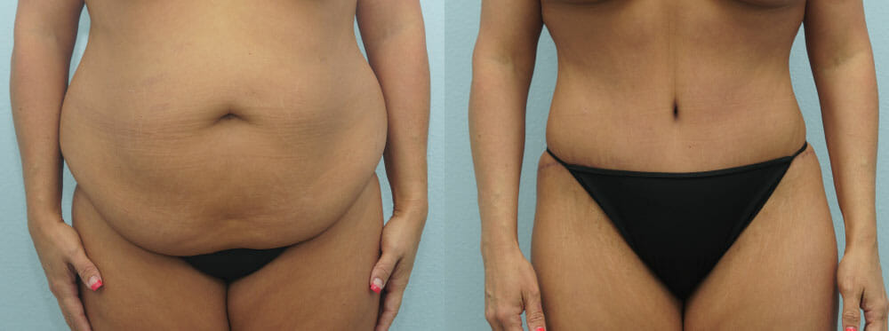 TUMMY TUCK PATIENT 35