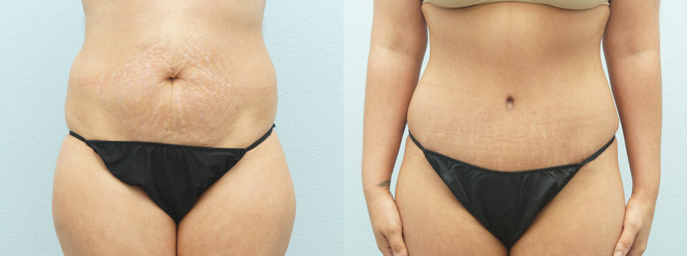 TUMMY TUCK (ABDOMINOPLASTY) PATIENT 18