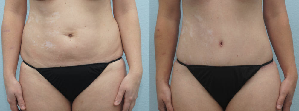 TUMMY TUCK PATIENT 27