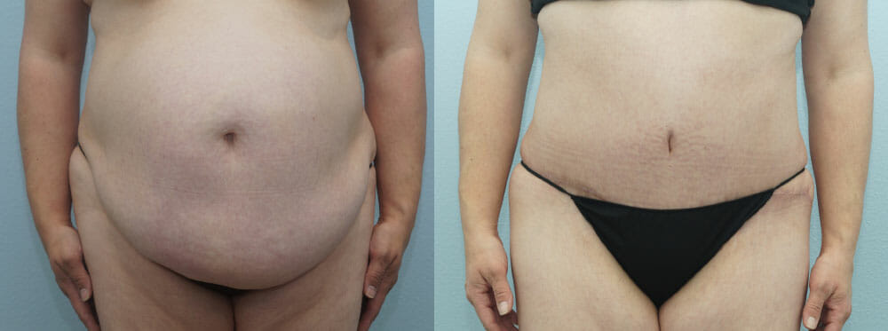TUMMY TUCK PATIENT 37