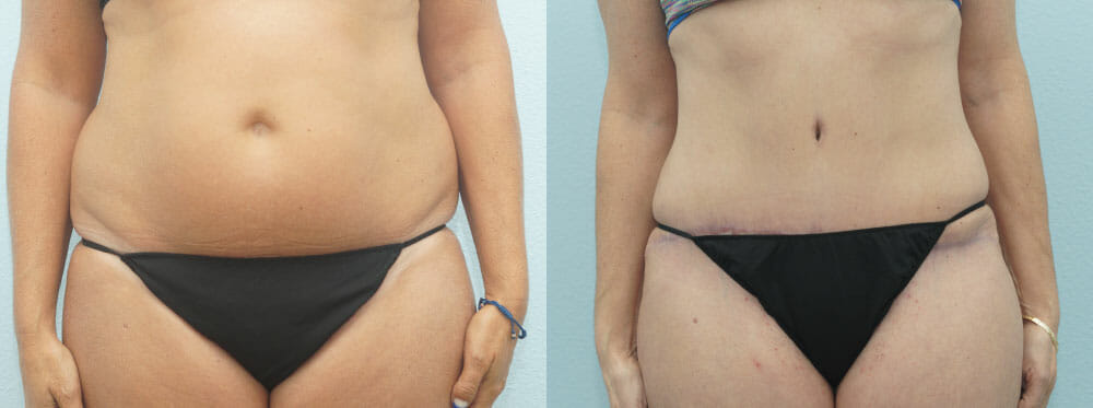 TUMMY TUCK PATIENT 32