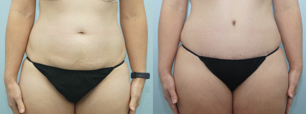 TUMMY TUCK PATIENT 26