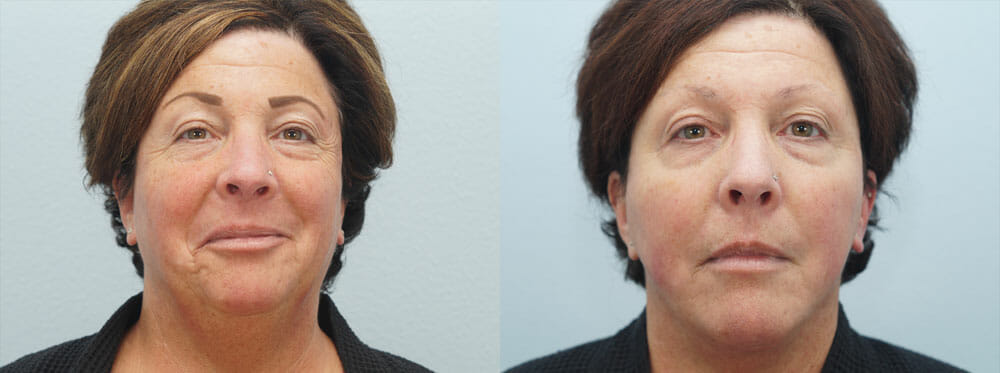 FACELIFT | NECK LIFT PATIENT 5