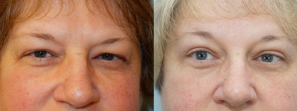 BROWLIFT AND EYELID SURGERY (BLEPHAROPLASTY) PATIENT 6
