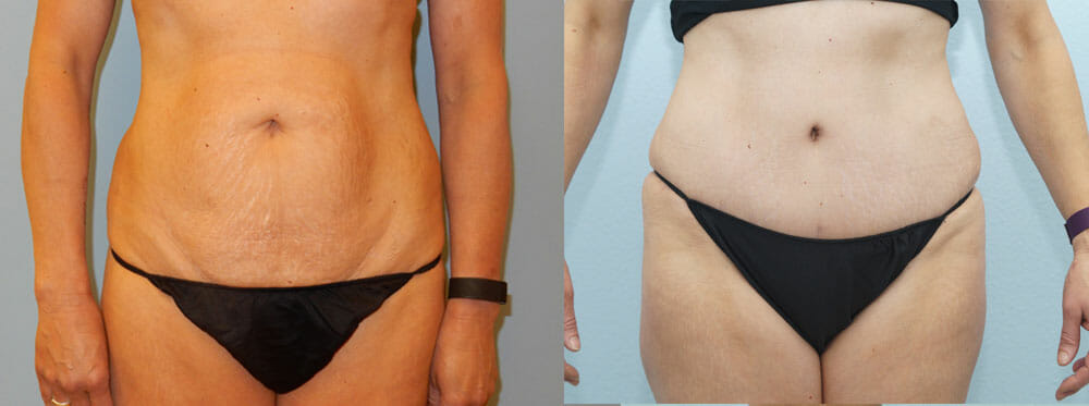 TUMMY TUCK (ABDOMINOPLASTY) PATIENT 3