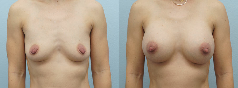 BREAST AUGMENTATION PATIENT 9