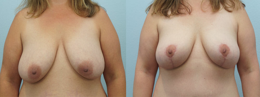 BREAST REDUCTION PATIENT 5