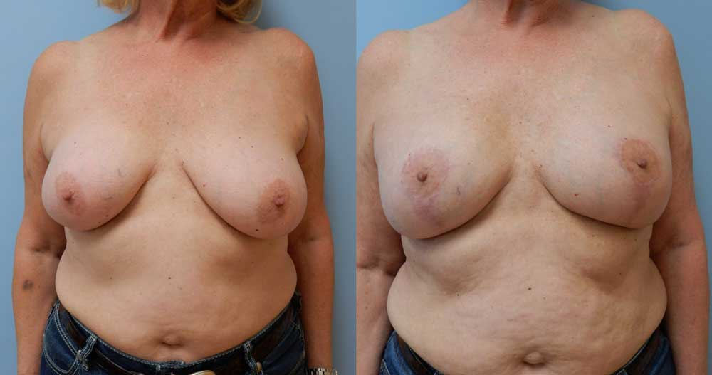 BREAST REVISION PATIENT 2