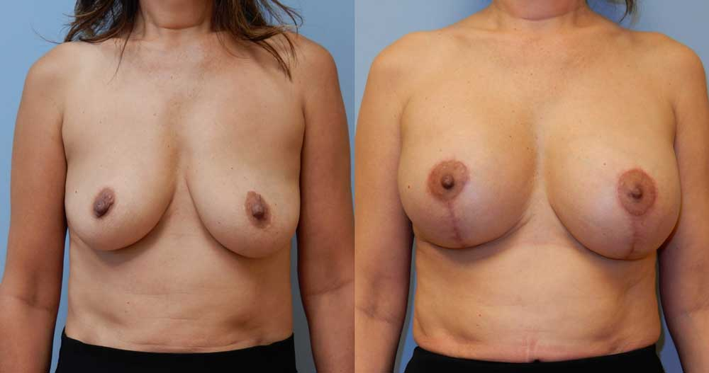 BREAST REVISION PATIENT 3