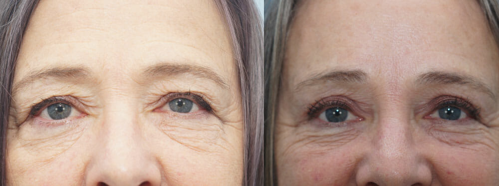 BROWLIFT AND EYELID SURGERY (BLEPHAROPLASTY) PATIENT 14