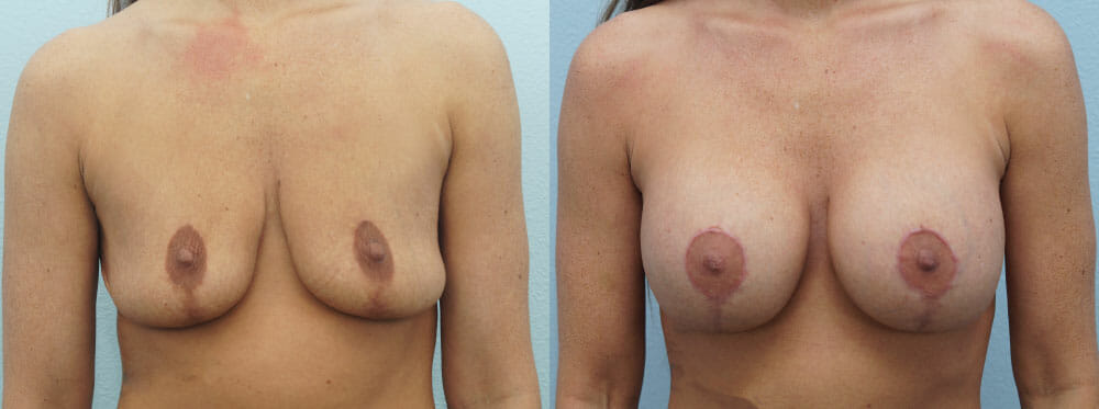 BREAST REVISION PATIENT 14