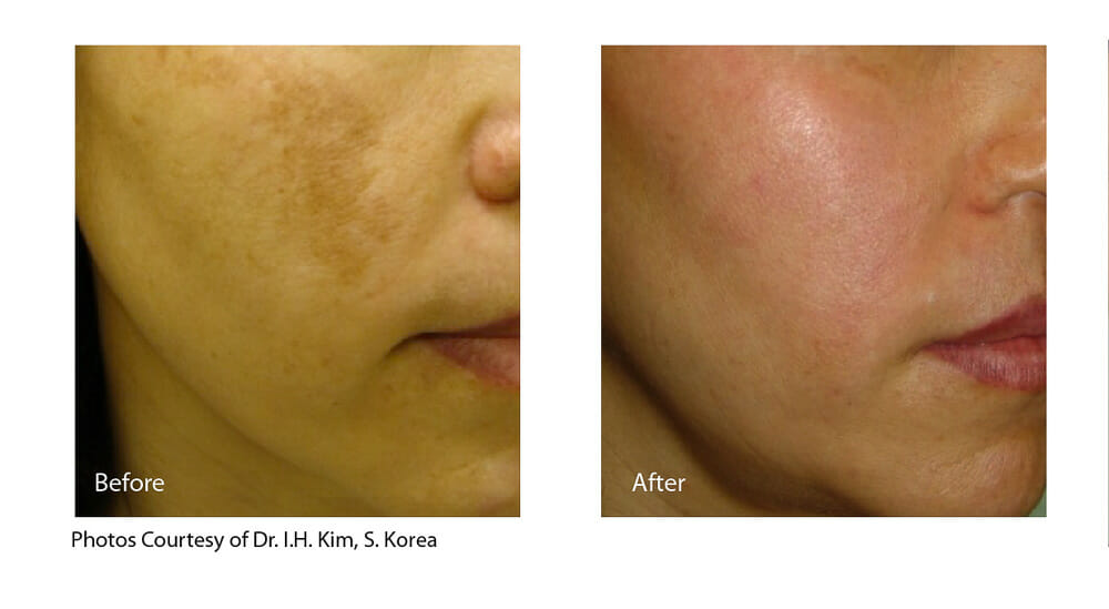 MELASMA TREATMENT PATIENT 1