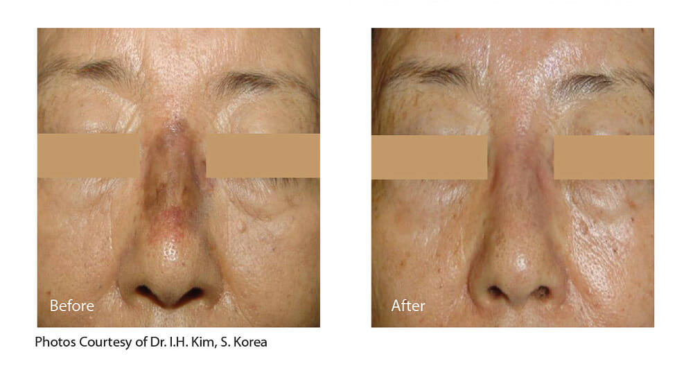 MELASMA TREATMENT PATIENT 3