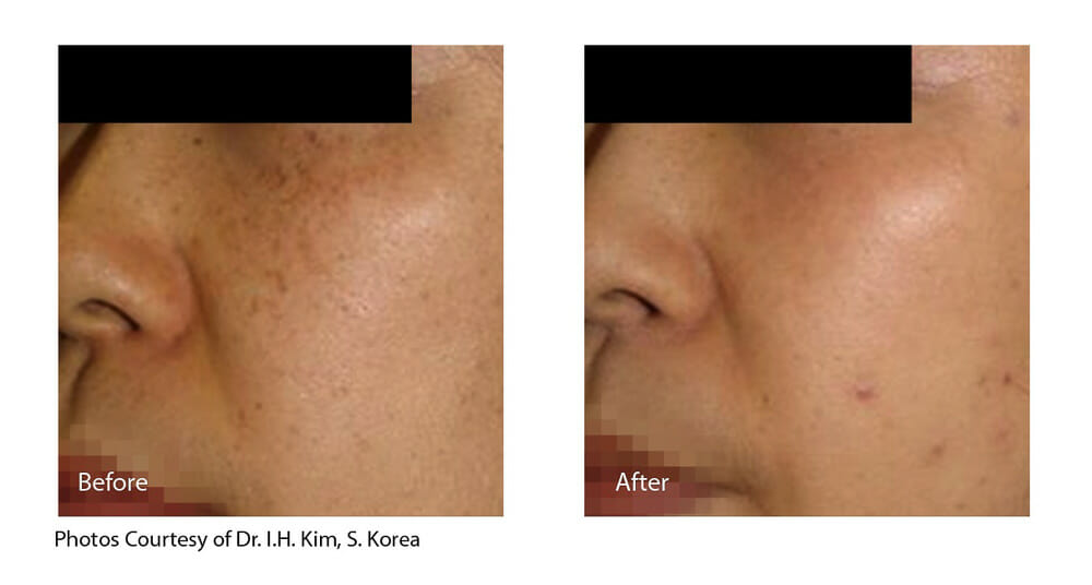 MELASMA TREATMENT PATIENT 2