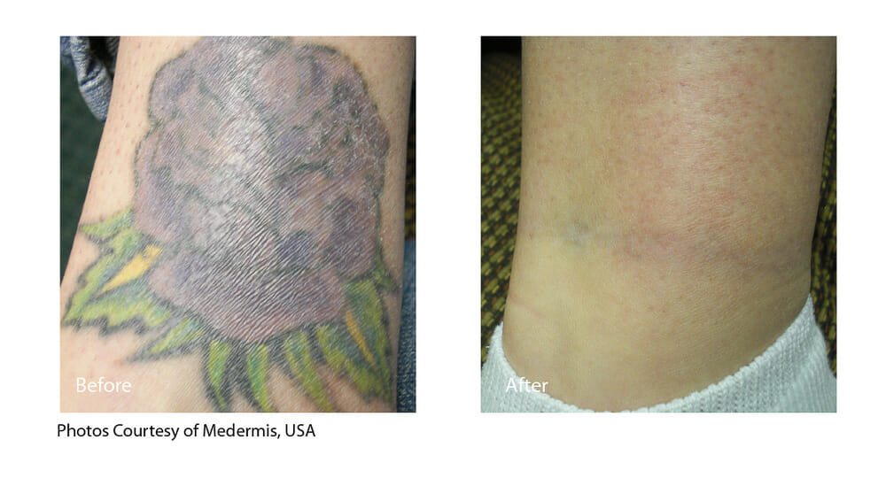 TATTOO REMOVAL PATIENT 1