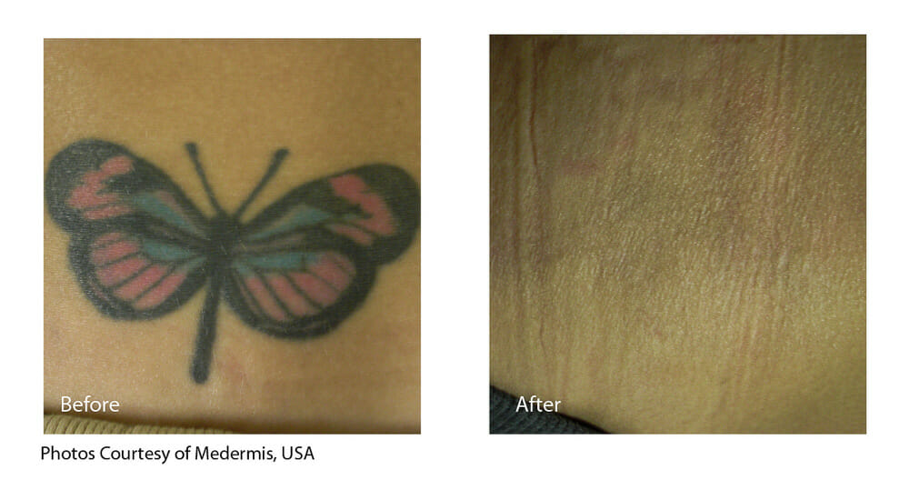 TATTOO REMOVAL PATIENT 2
