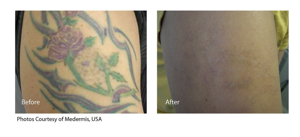 TATTOO REMOVAL PATIENT 3