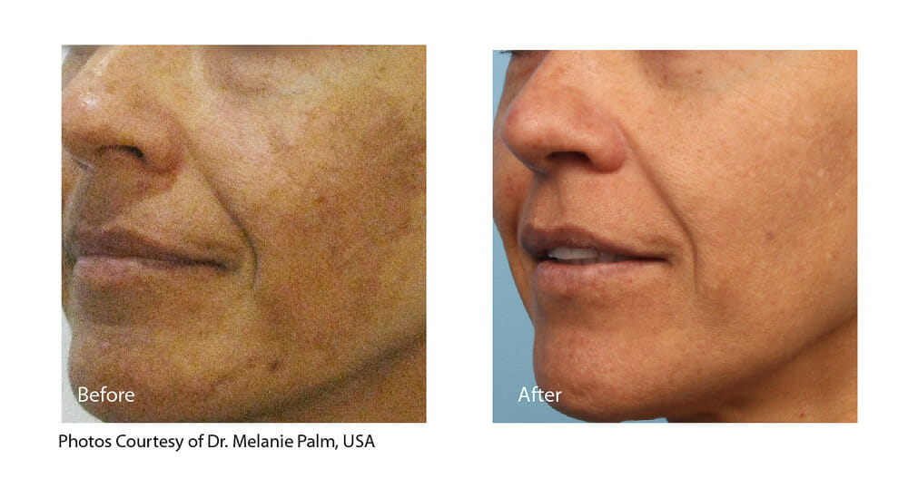 MELASMA TREATMENT PATIENT 4