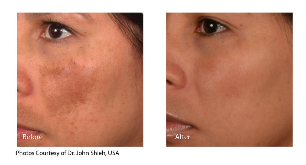 MELASMA TREATMENT PATIENT 5