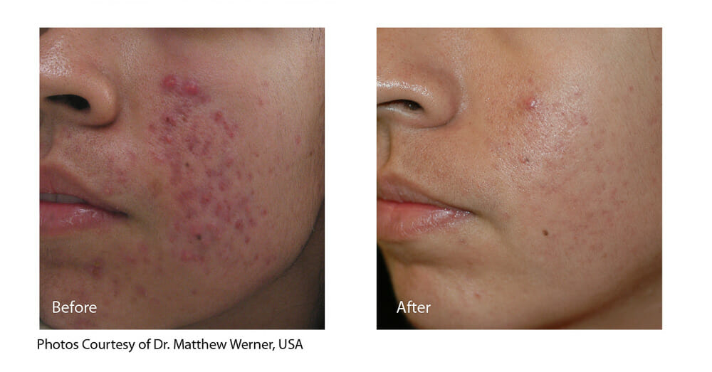 ACNE AND SCAR REDUCTION PATIENT 3