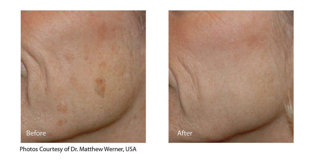 MELASMA TREATMENT PATIENT 6