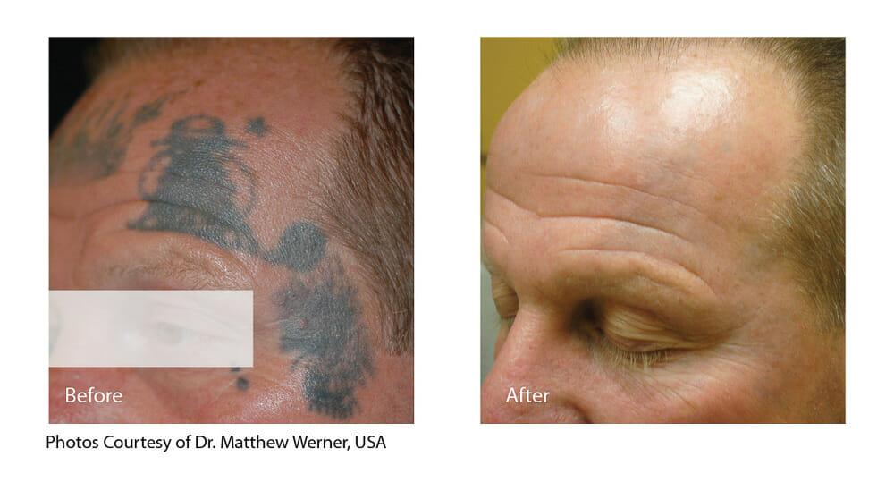TATTOO REMOVAL PATIENT 4