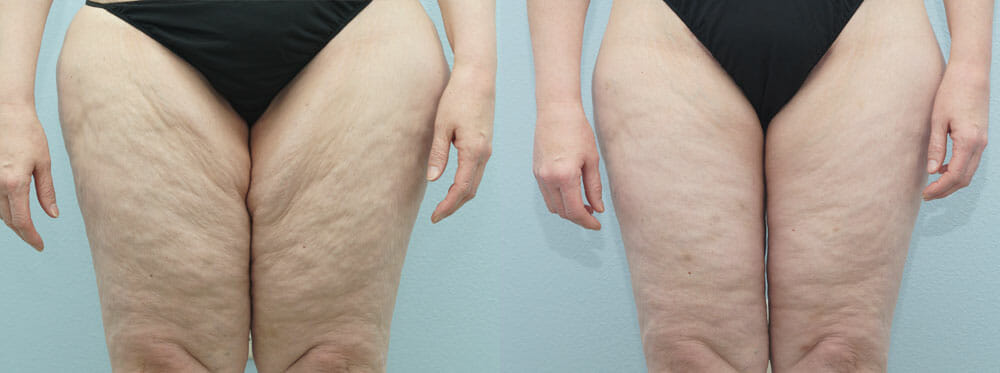 THIGH LIFT PATIENT 1