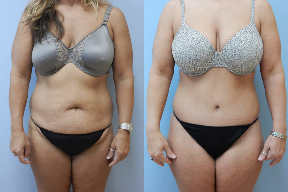 TUMMY TUCK (ABDOMINOPLASTY) PATIENT 1