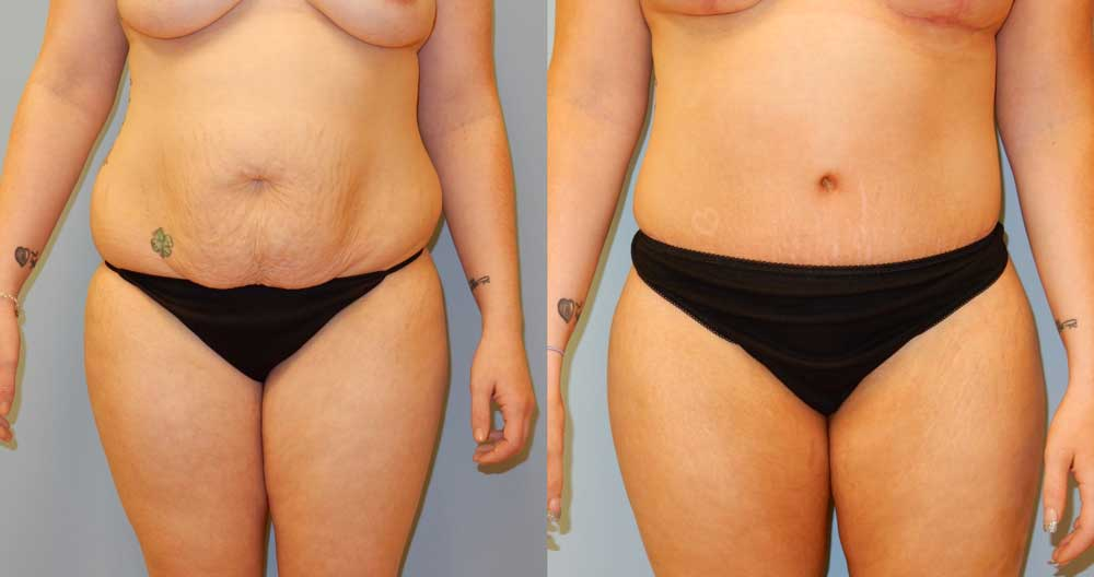 TUMMY TUCK (ABDOMINOPLASTY) PATIENT 2