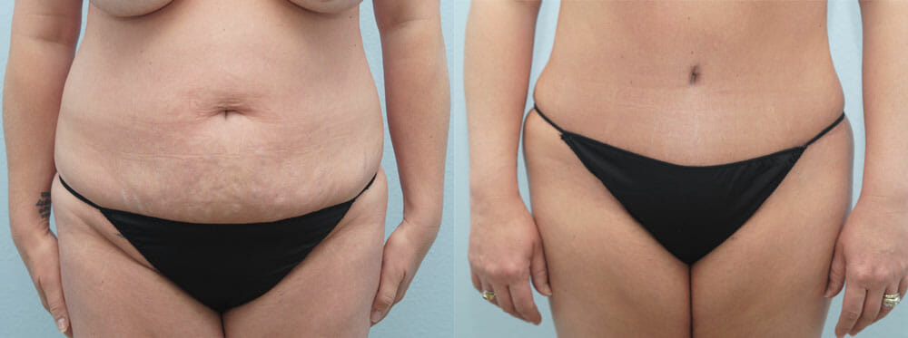 TUMMY TUCK (ABDOMINOPLASTY) PATIENT 17